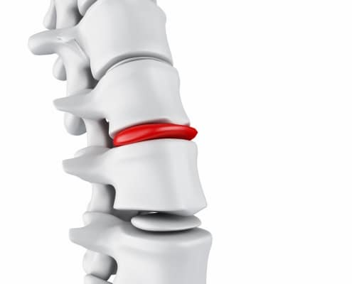 Herniated Disc Treatment Boca Raton FL